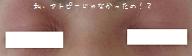目の周りのアトピーもだいぶ治った