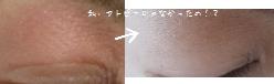 ホホバオイルをクレンジングとして使っていたら、目の上のアトピーが治った?