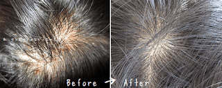 週一回髪を洗う事で、ぶつぶつは治る
