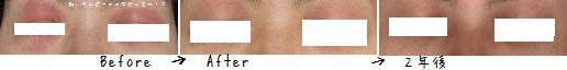 目アトピー治る2