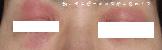 アトピー目の周りも腫れあがる