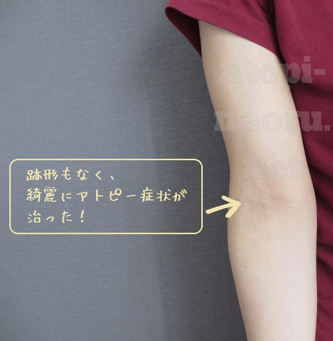 腕のアトピーも完治