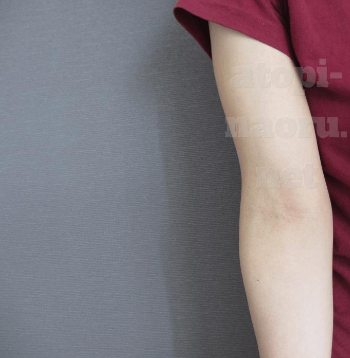 腕のアトピー完治